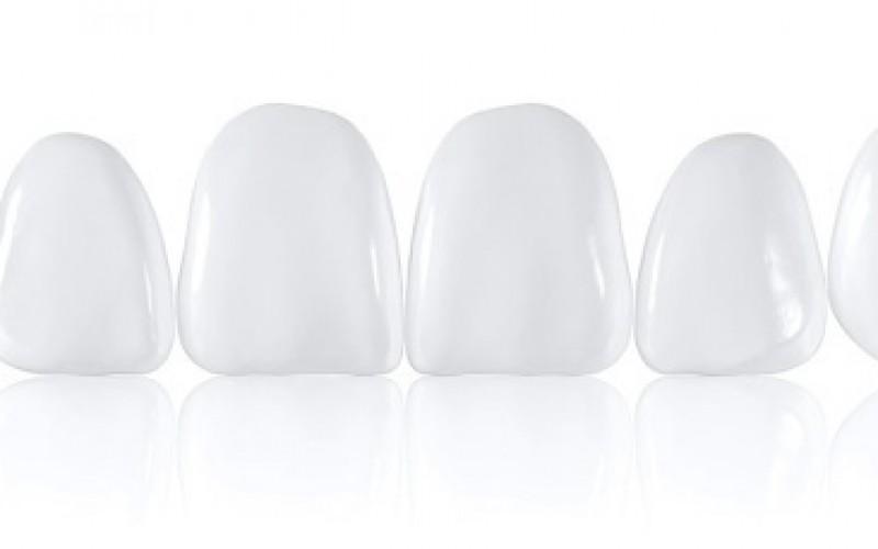 Naujiena estetinėje odontologijoje – COMPONEER