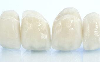 Dantų protezavimas įvairiomis metodikomis ir medžiagomis