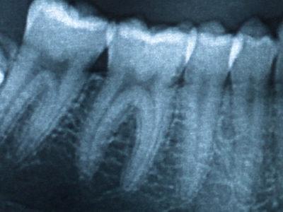 Dentalinė nuotrauka parodo 1–3 dantų būklę